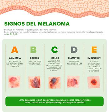 signos del melanoma  para detectar el cáncer de piel